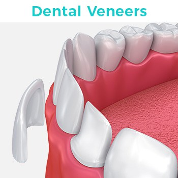 Dental Veneers in Tijuana Mexico