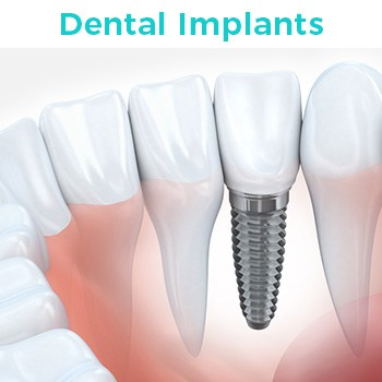 Dental Implants in Tijuana Mexico