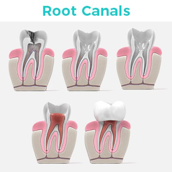 Root Canals in Tijuana Mexico