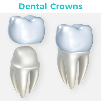 Dental Crowns in Tijuana Mexico